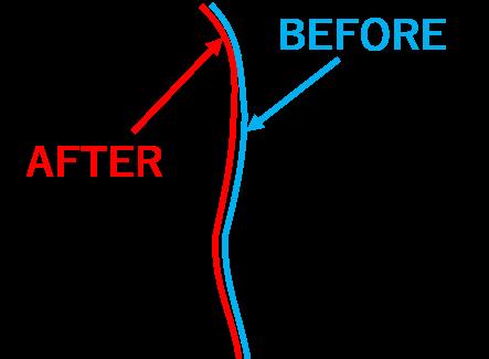 骨盤矯正前後の背中のライン